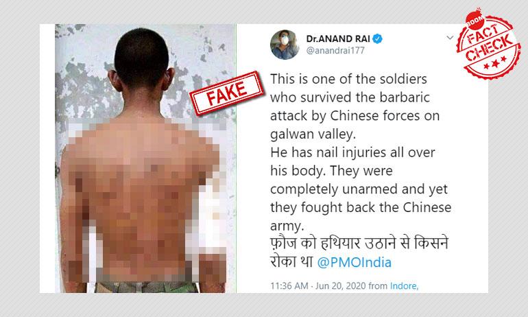 यह तस्वीर हाल में भारत-चीन स्टैंडऑफ में घायल सिपाही की नहीं है